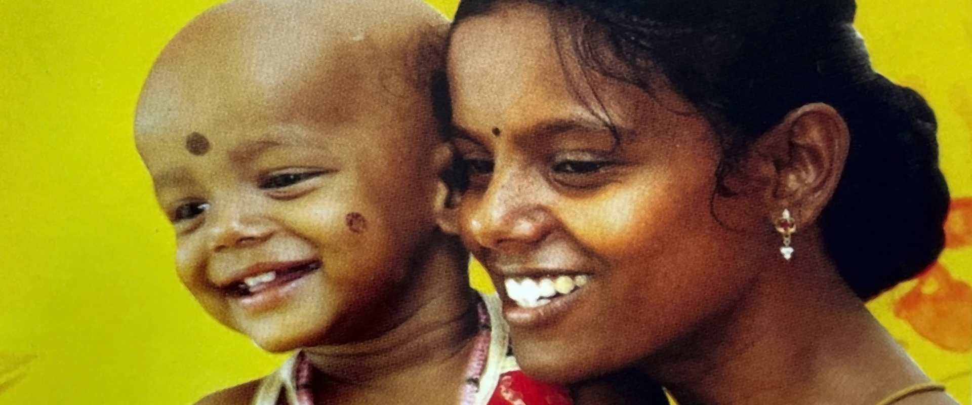 Mother and Child Cancer Patient